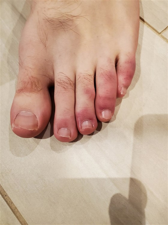 Doctors find more cases of 'COVID toes' in dermatological ...