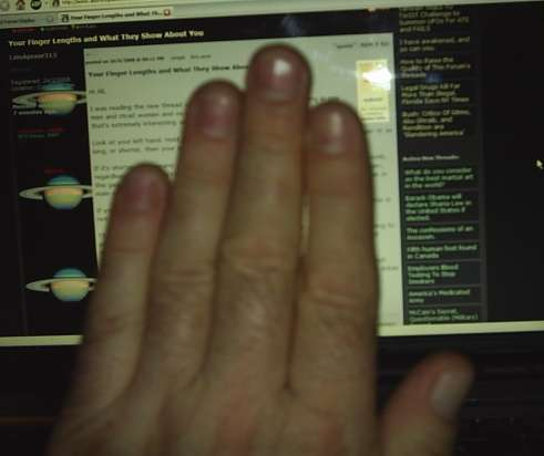Digit Ratio - Marker of sexual dimorphism and handedness!